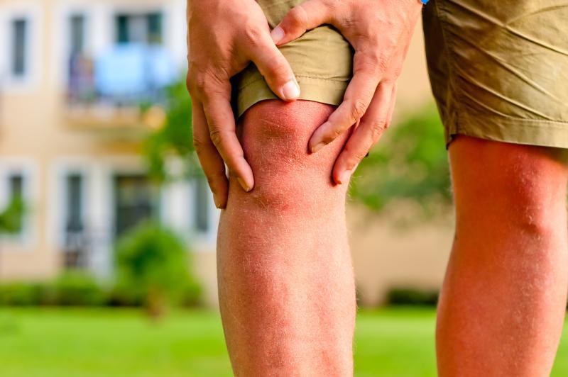 Singapore Orthopaedics Specialist